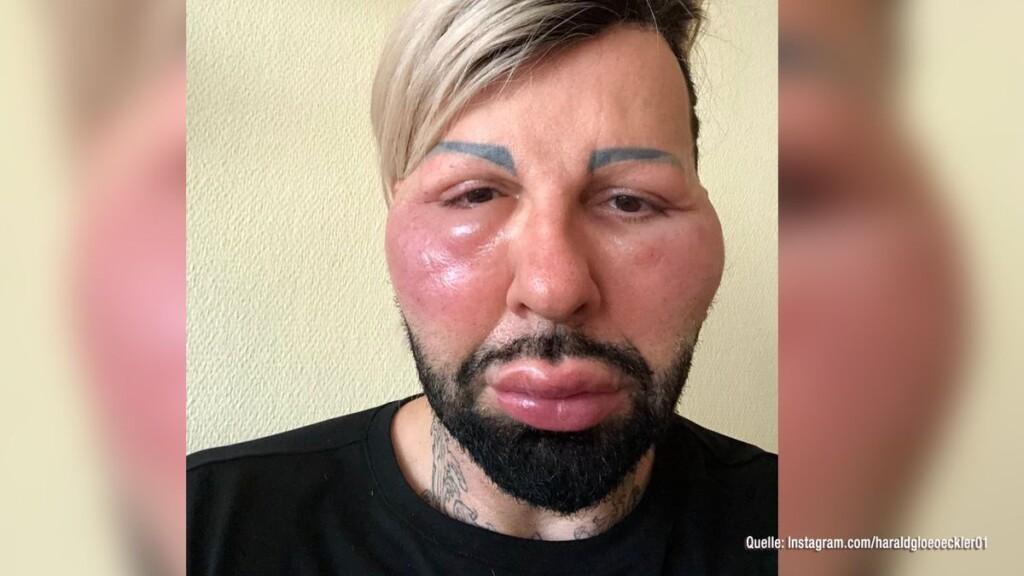 Harald Glööckler hat eine Allergie und dadurch ein geschwollenes Gesicht.