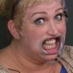Big Brother Tag 4 – Asa muss Zahnspange tragen